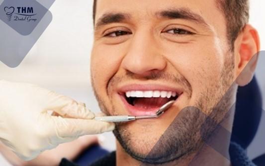 Các bước cấy ghép Implant - Khám sức khỏe răng miệng