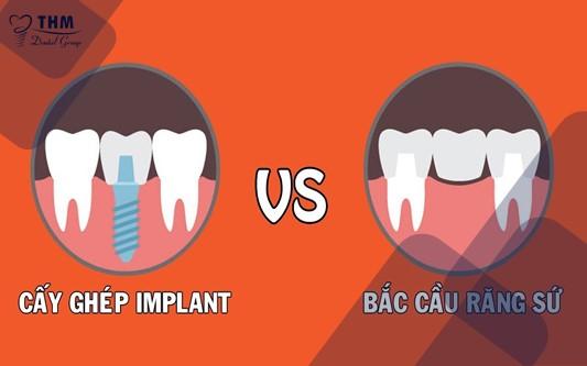 Cấy ghép răng Implant khắc phục khuyết điểm của gắn răng giả