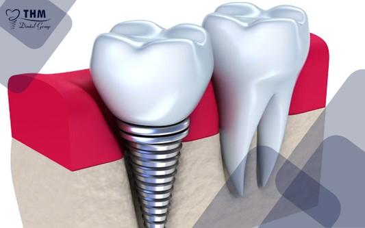 Định nghĩa về phương pháp trồng răng Mini Implant