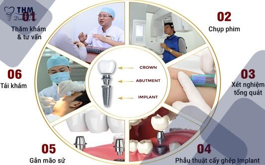 Quy trình thực hiện cấy ghép implant