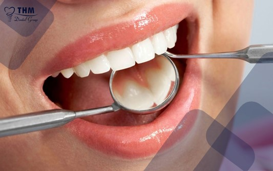 Những đối tượng nào nên sử dụng phương pháp trồng răng Mini Implant?