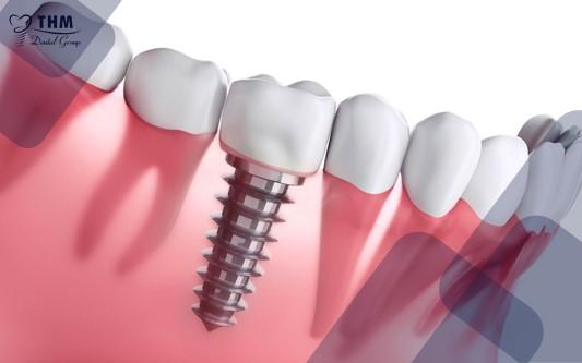 Trồng răng implant bao lâu thì lành?