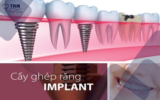 Cấy ghép implant - Khi cam kết an toàn sức khỏe luôn là yêu cầu tiên quyết