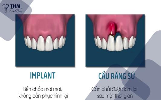 Khác biệt lớn giữa tuổi thọ của răng implant và răng sứ
