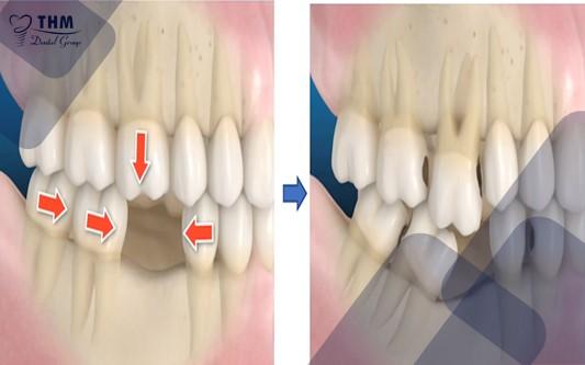 Hậu quả của việc mất răng