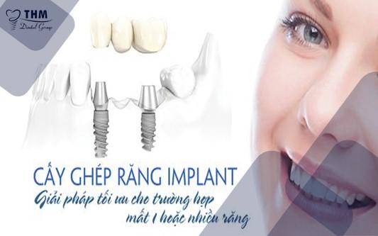Lợi ích của cấy ghép răng Implant