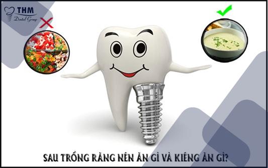 Lưu ý sau khi trồng răng