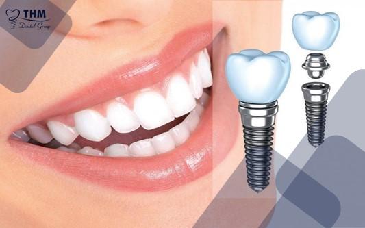 Răng Implant giúp bạn thẩm mỹ và tự tin hơn
