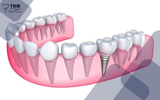 Răng Implant tích hợp vào xương hàm giúp nó được duy trì và bảo vệ