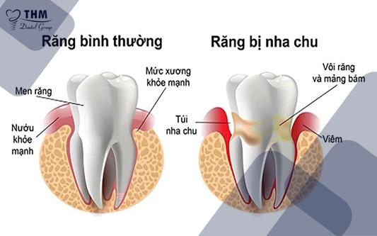 Răng bị nha chu gây tốn thời gian hơn khi trồng răng Implant