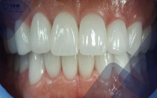Khi mất răng lâu năm không còn là vấn đề lớn