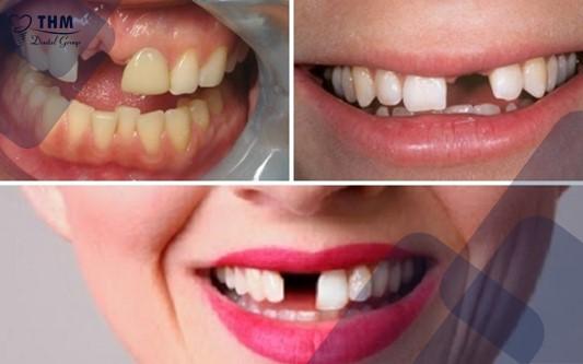 Tác hại của mất răng nhiều năm liền