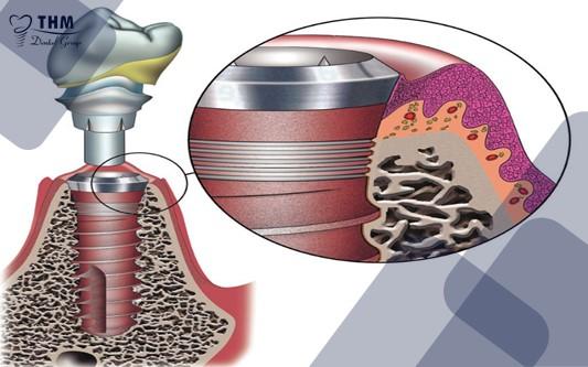 Tính thẩm mỹ của răng Implant