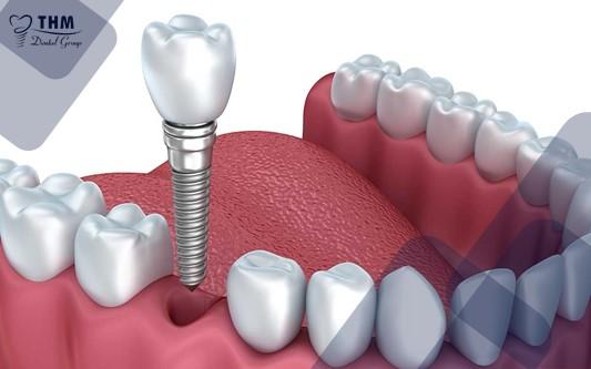 Trụ Implant tích hợp với tế bào xương