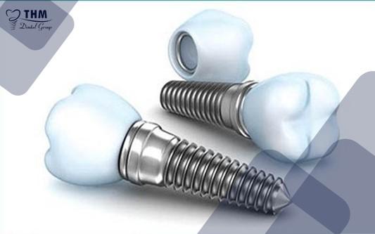 Trụ răng Implant