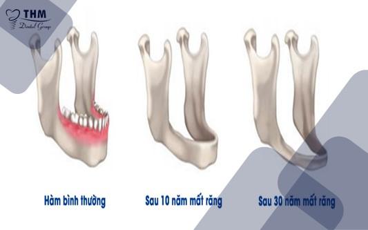 Xương hàm bị tiêu sau khi mất răng