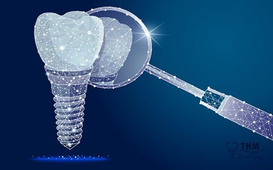 Định nghĩa phương pháp trồng răng Mini Implant