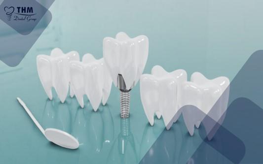 Sau khi cấy ghép Implant, nên ăn những thực phẩm nào là tốt cho răng?