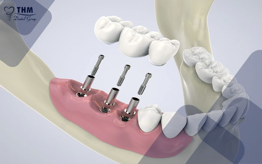 Những xét nghiệm cần biết trước khi tiến hành cấy ghép Implant