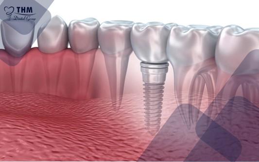 Có nên trồng răng Implant cho người lớn tuổi?