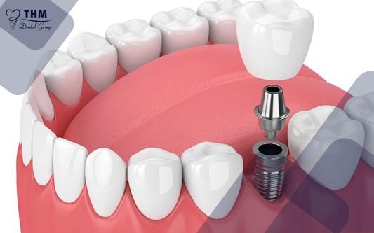 Phương pháp trồng răng Implant có phù hợp cho trẻ nhỏ?
