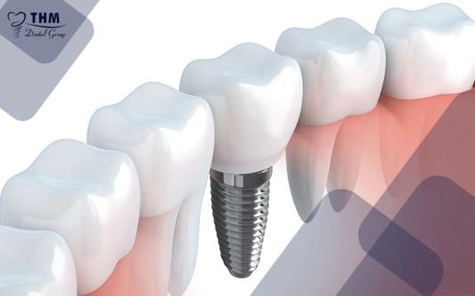 Những đối tượng không nên trồng răng Implant
