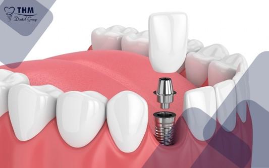 Kiêng ăn những gì để bảo vệ vùng răng implant vừa trồng?