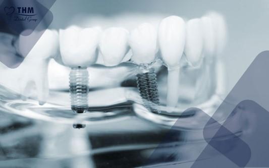Tại sao bệnh tiểu đường ảnh hưởng đến quá trình trồng răng Implant?