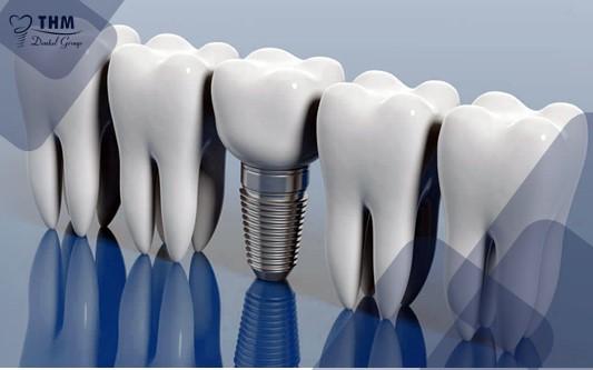 Cấy ghép Implant và những điều cần biết