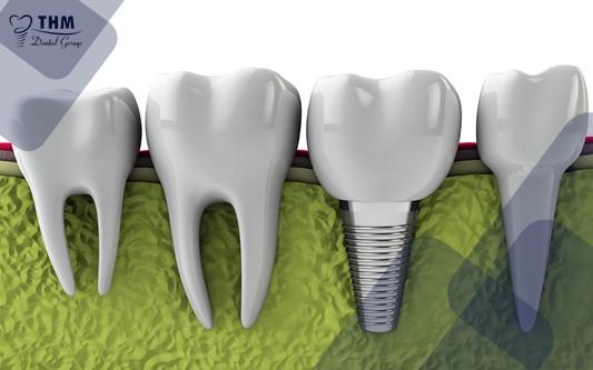 Điều kiện cần thiết để cấy ghép Implant