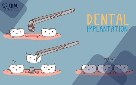 Phẫu thuật Implant hoàn toàn không ảnh hưởng khi di chuyển bằng máy bay