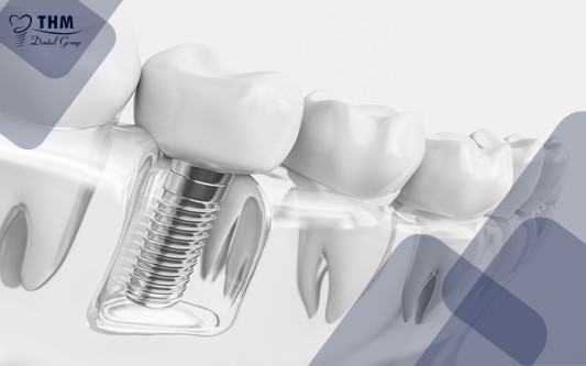 Bệnh lý về răng miệng ảnh hưởng ra sao trong quá trình cấy ghép Implant?