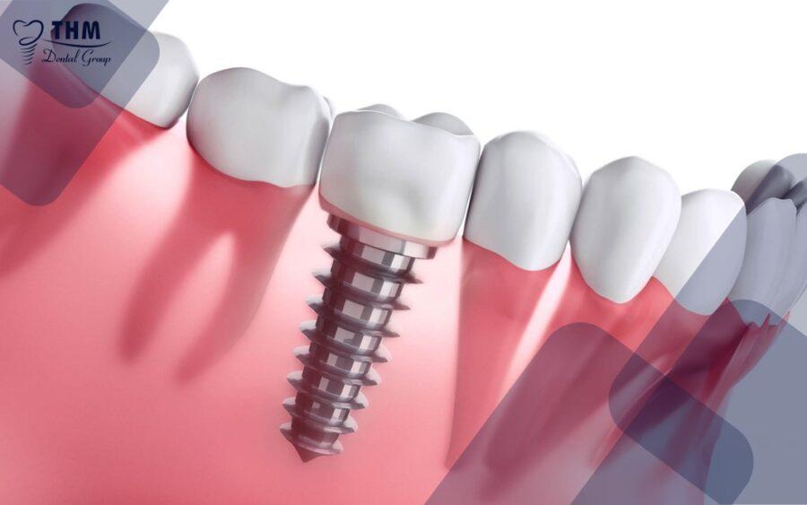 Chi phí làm Implant trung bình