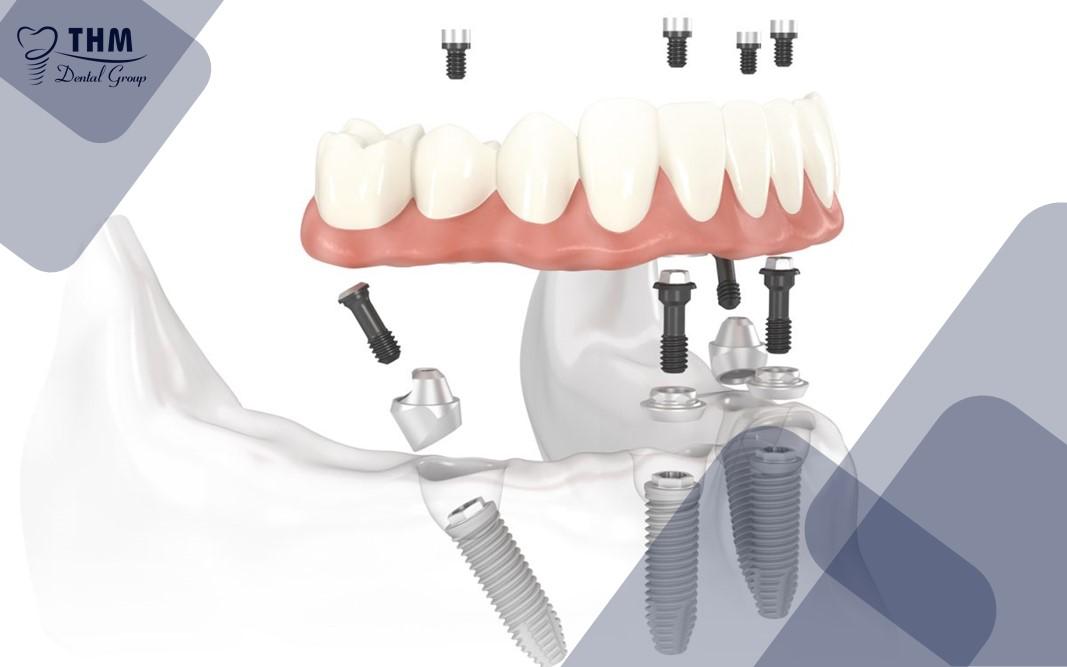 Tổng quan về phương pháp cấy ghép Implant All on 4
