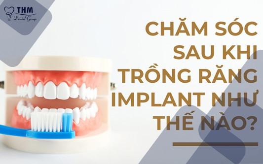 Hướng dẫn chăm sóc sau trồng răng Implant