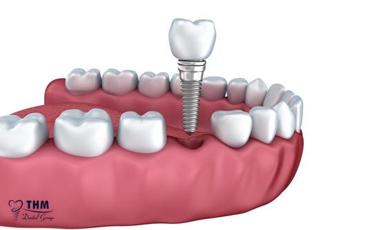 Những ai nên chọn phương pháp cắm Mini Implant