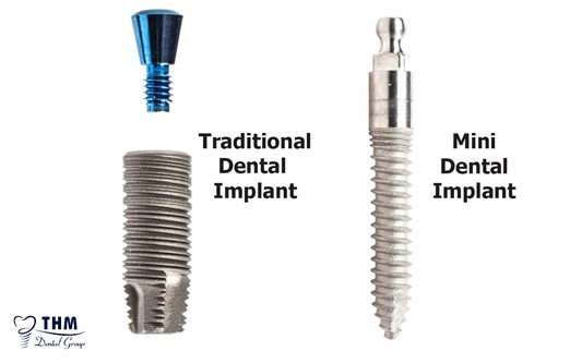 Phân biệt giữa trụ Mini Implant và trụ thông thường