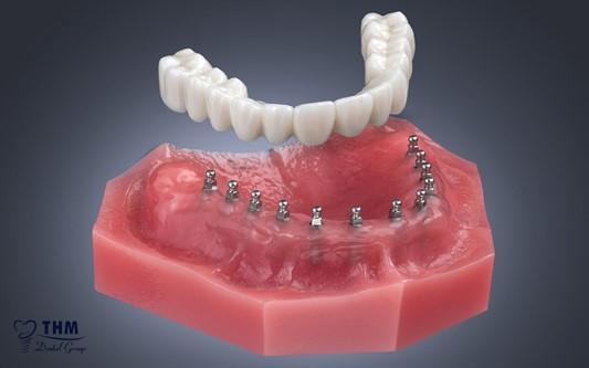 Ưu điểm khi cấy Mini Implant