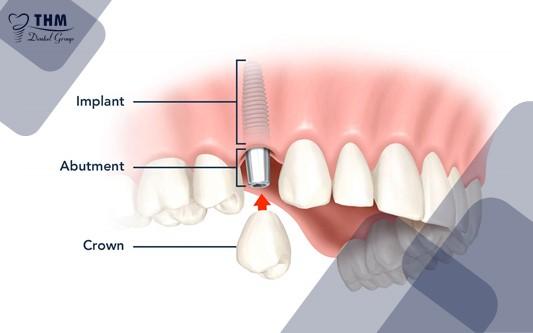 Các loại khớp nối Abutment Implant phổ biến