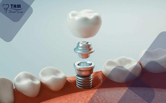 Đặc điểm về thời gian hồi phục của phương pháp trồng răng Implant trong ngày