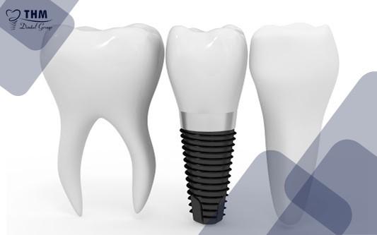 Định nghĩa về công nghệ làm răng Implant 4S