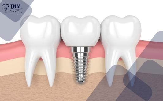 Đối tượng thích hợp để cấy ghép Implant trong ngày