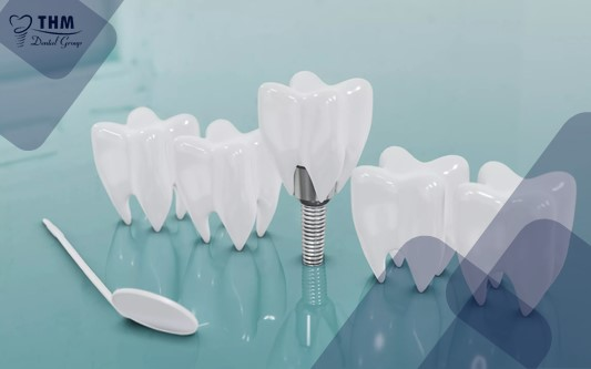 Hai khoảng thời gian diễn ra phẫu thuật Implant phổ biến