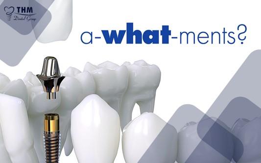 Khái niệm và cấu tạo khớp nối Abutment Implant