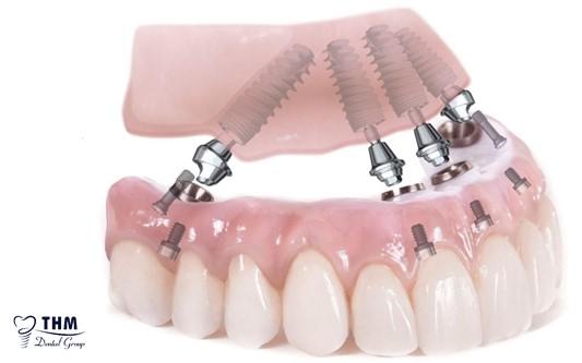 Khái quát về kỹ thuật cấy ghép Implant All on 4