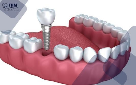 Kỹ thuật cấy ghép Implant đơn lẻ
