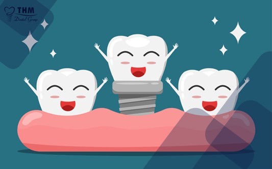 Kỹ thuật ghép xương răng có dùng màn titan
