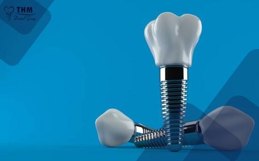 Kỹ thuật nâng xoang NQT kết hợp cấy ghép Implant