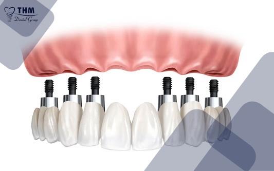 Kỹ thuật phục hình răng Implant All on 6 là gì?