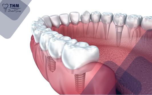 Kỹ thuật phục hình răng Implant ở nhiều vị trí cùng lúc